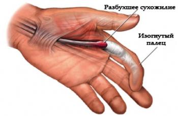 Стенозирующий лигаментит