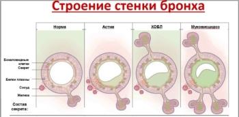 Строение бронхов при бронхиальной астме