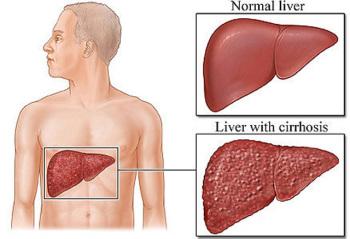 Цирроз печени - лечение