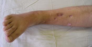 В большинстве случаев заболевание захватывает голенную кость, бедренную и плечевую