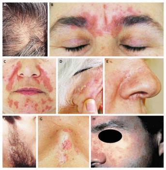 В запущенных случаях от себорейного дерматита страдают и другие участки тела