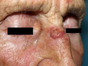 Выглядит базалиома, как небольшая опухоль или узелок розового цвета, которая слегка возвышается над поверхностью кожи