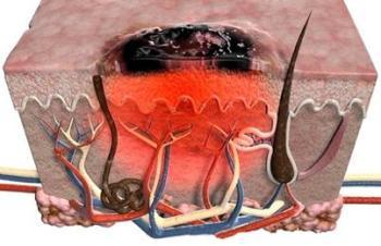Злокачественная меланома