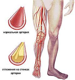 Атеросклероз, лечение народными средствами