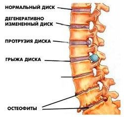 Анатомия позвоночного столба