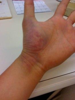 Ушиб запястья руки лечение