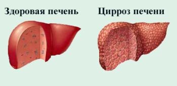 Народные средства при гепатите а