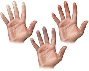 Болезнь Рейно – это онемение пальцев на руках и ногах