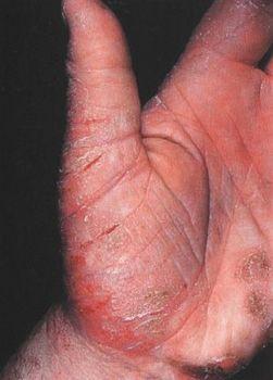 Лечение трещин на руках народными средствами