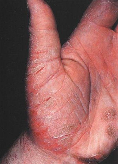 В чем отличие аллергического дерматита от атопического дерматита