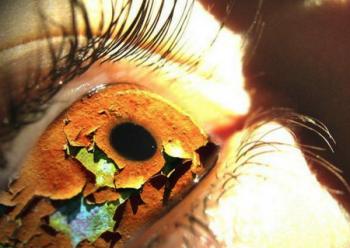 Синдром сухого глаза, лечение народными средствами