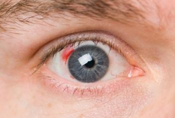 Лечение ретинопатии народными средствами