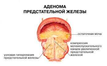 Аденома предстательной железы, лечение народными средствами