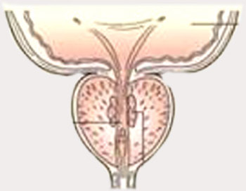 Если у мужчины рак предстательной железы
