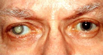 Больной и здоровый глаз