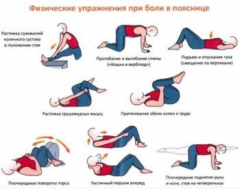 Физкультура при радикулите