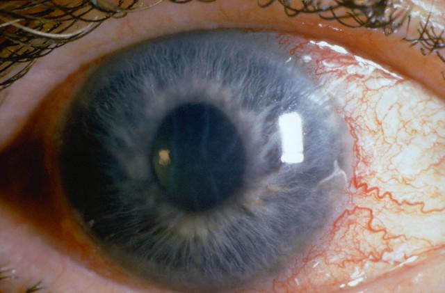 Что такое астигматизм глаз у взрослого человека