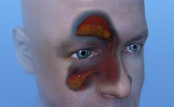 Лечение кисты носа народными средствами