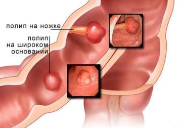 Лечение полипов кишечника народными средствами