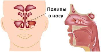 Лечение полипов носа народными средствами