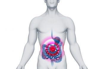 Симптомы полипов кишечника