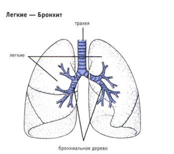 Бронхиальное древо может быть полностью повреждено в результате такого заболевания, как бронхит
