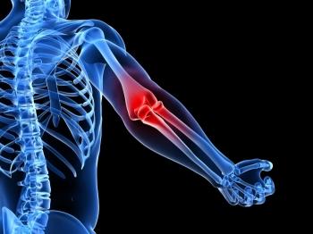 Воспаление суставов лечение народными средствами