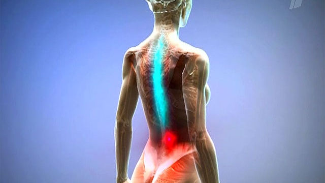 Межреберная невралгия причины лечение симптомы и лечение
