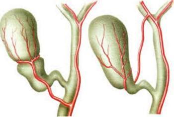 Перегиб желчного пузыря причины лечение