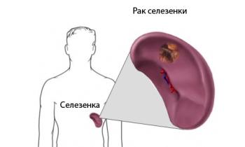 Опухоль селезенки