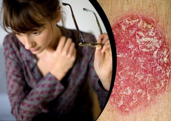29 октября - Международный день псориаза - Сайт здоровой кожи