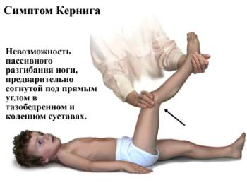 Симптом Кернига