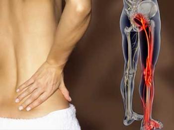 Воспаление седалищного нерва лечение народными средствами