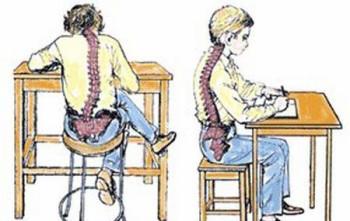 Неправильная поза за рабочим столом - причина сколиоза