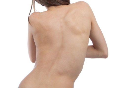 Искривление верхней части спины