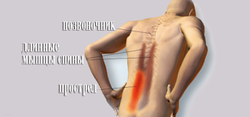 Спазм мышц спины