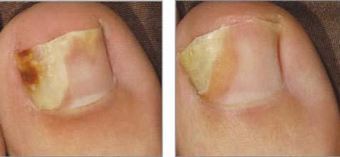 Народное средство от грибка на ногах недорогое