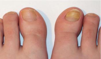 Ногтевой грибок на ногах: лечение народными средствами