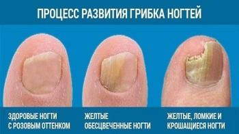 Развитие грибка на ногтях