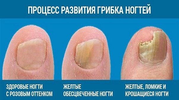 Лечение грибка ногтей народными средствами - рецепты.