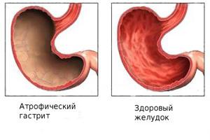 Желудок при атрофическом гастрите