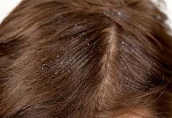 Жирная себорея волосистой части головы