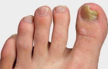 Народная медицина от грибка ногтей ног